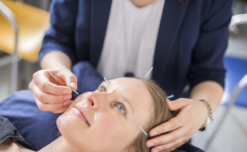 Eine Frau lächelt, während ihr Akupunkturnadeln von Frau Dr. Schönhart am Kopf gesetzt werden.