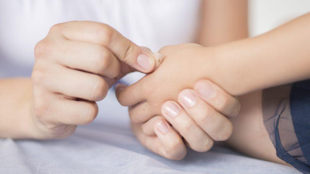 Dr. Schönhart klebt ein Goldkügelchen auf eine Kinderhand auf um einen Akupunkturpunkt schmerzfrei zu stimulieren.