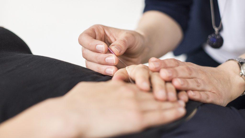 Körperakupunktur bei einer Frau wird durchgeführt. Frau Dr. Schönhart setzt eine Nadel auf die Hand.